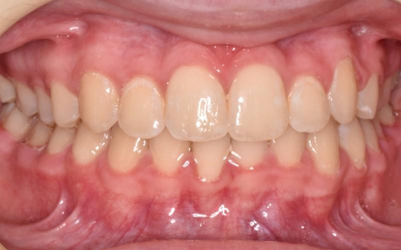 McKenzie anterior after (1)x