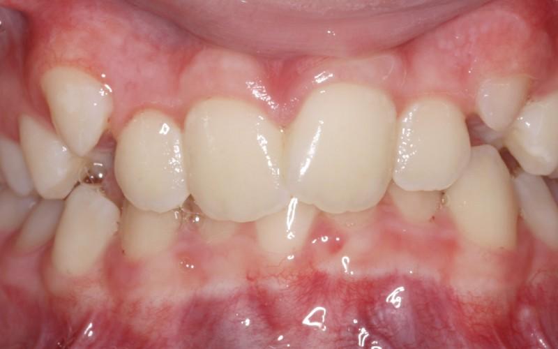 McKenzie anterior before (1)x