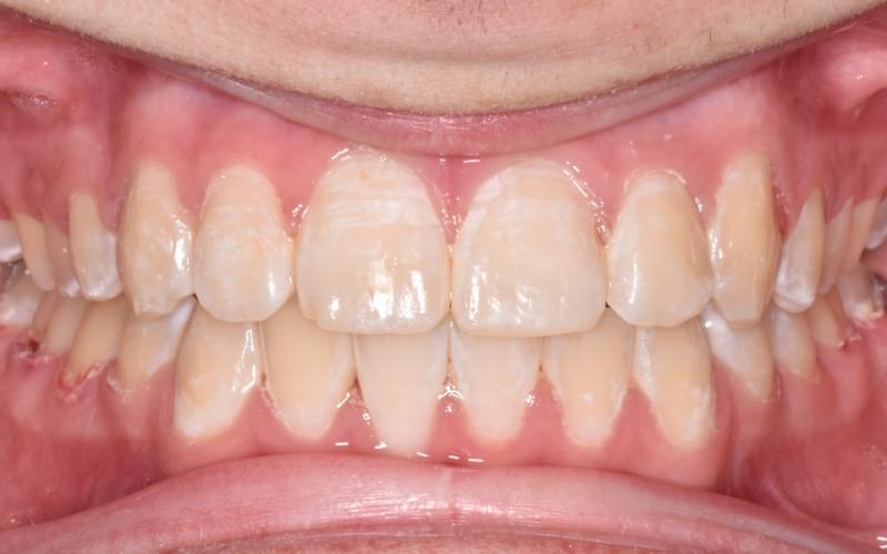 rocco after anterior (1)