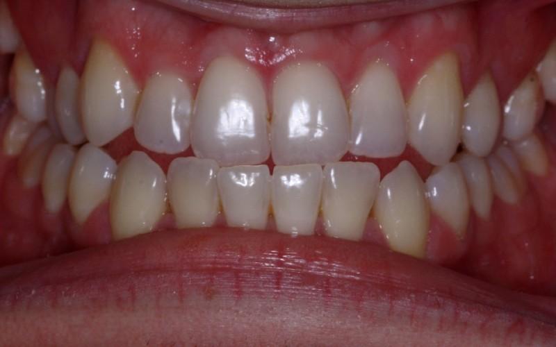 ryan anterior before (1)x